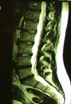 ernia-del-disco-caso-clinico-1b