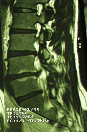 ernia-del-disco-caso-clinico-3b