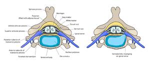 ernia-del-disco-confronto