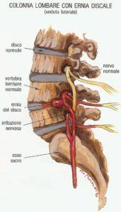 ernia-del-disco