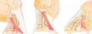 colpo di frusta chiropratica