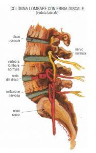 mal di schiena ernia discale