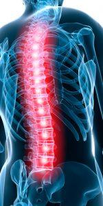 ernia cura chiropratica