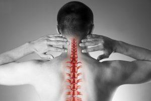 sublussazione vertebrale