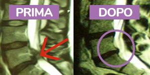 Ernia del Disco - Risonanze Magnetiche prima del trattamento chiropratico e dopo il trattamento chiropratico.